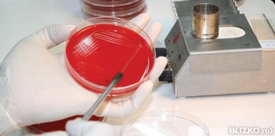 Посев спермограммы на микрофлору условия